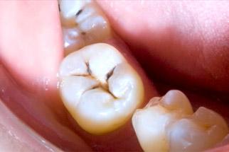 Composite Fillings - Vancouver Dentist