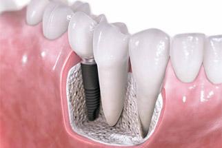 Implant Dentistry - Dr. Wayne Chou Vancouver