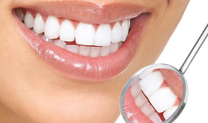 Teeth Whitening - Vancouver Oak Street Dentistry
